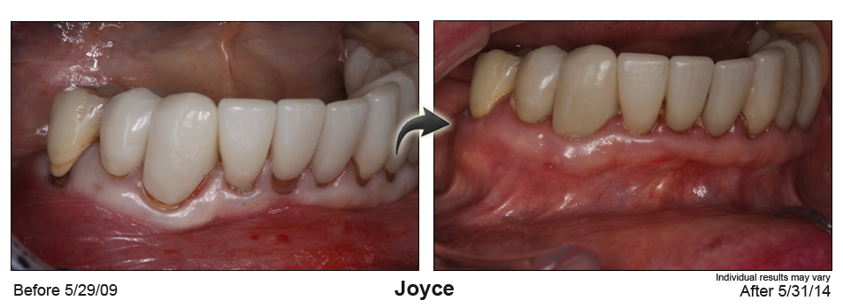 Before after case 04