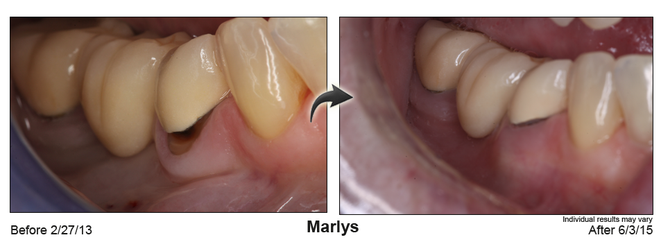 Before after case 07