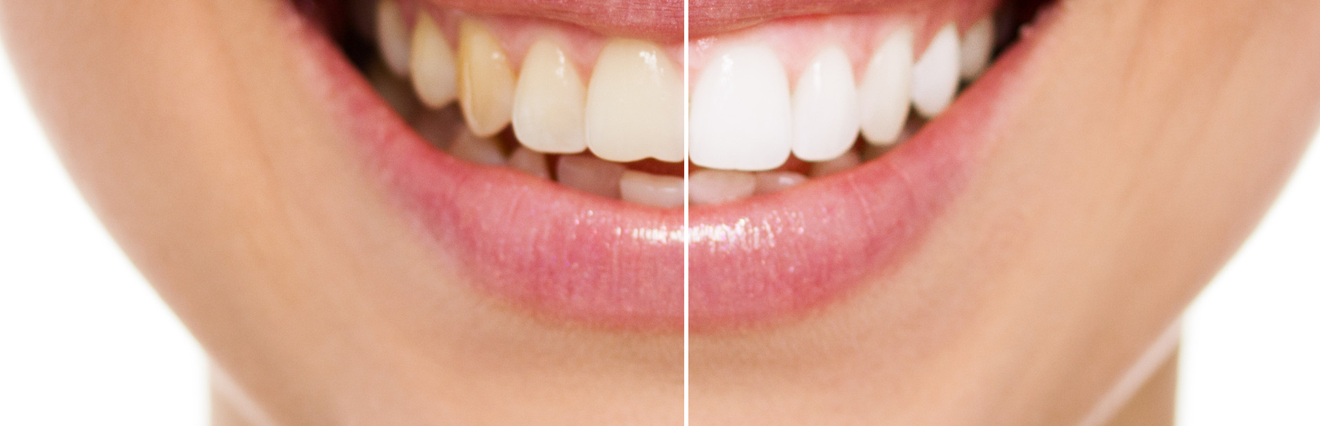 Woman before after cosmetic dentistry