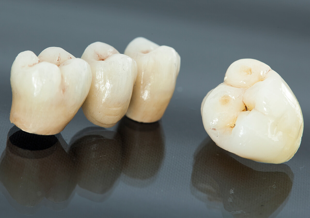Cerec Crowns in Santa Barbara, CA Area for Elevating the Dental Experience