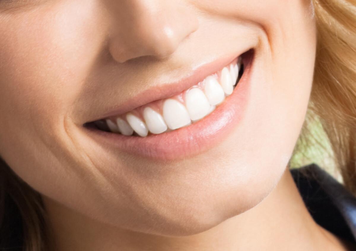 Cosmetic dental bonding helps Santa Barbara, CA, patients improve their smiles